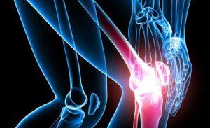 artritis_reumatoide-710x434