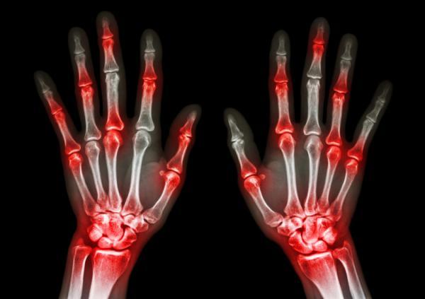 """Recomendaciones Nutricionales: """"Artritis reumatoide…y alimentación"""""""