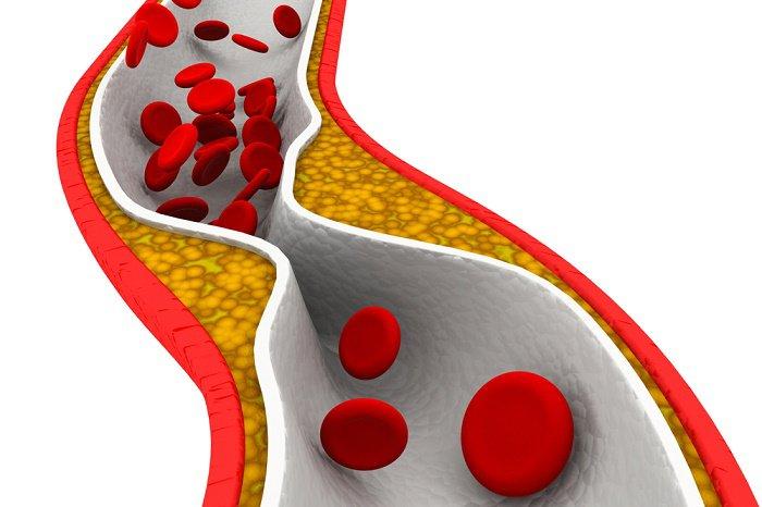 """Recomendaciones Nutricionales: """"Colesterol…y alimentación"""""""